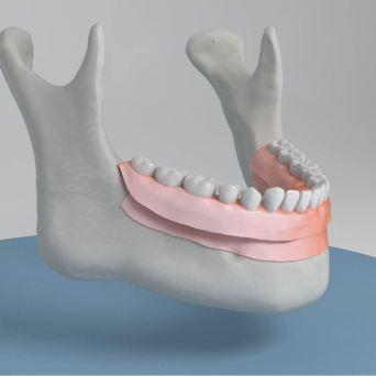 Prótesis aplicada