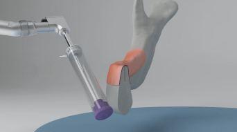 Posicionamiento de implante